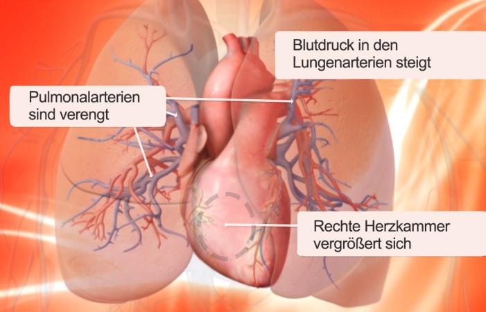 Lungenhochdruck Grafik (Foto: Bayer Vital)
