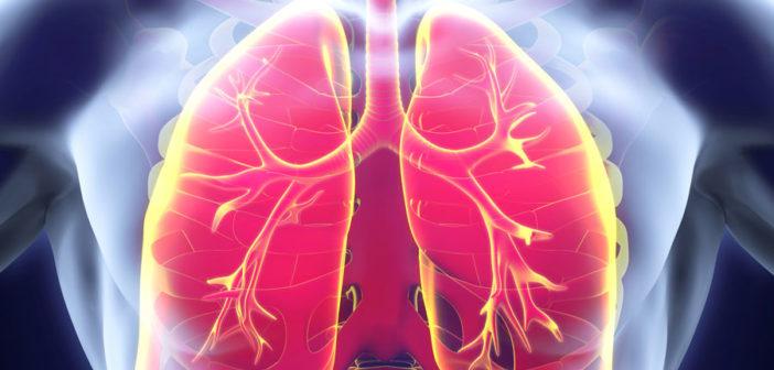 Kleinzelliger Lungenkrebs (Foto © Fotolia)