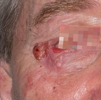 Basalzellkarzinom am rechten Auge
