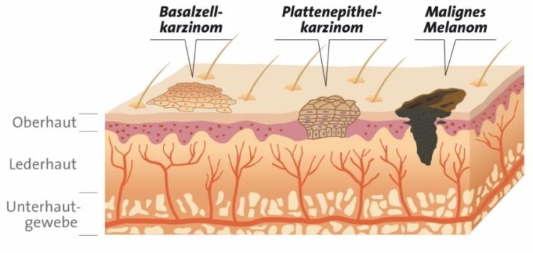 Verschiedene Formen von Hautkrebs - Infografik
