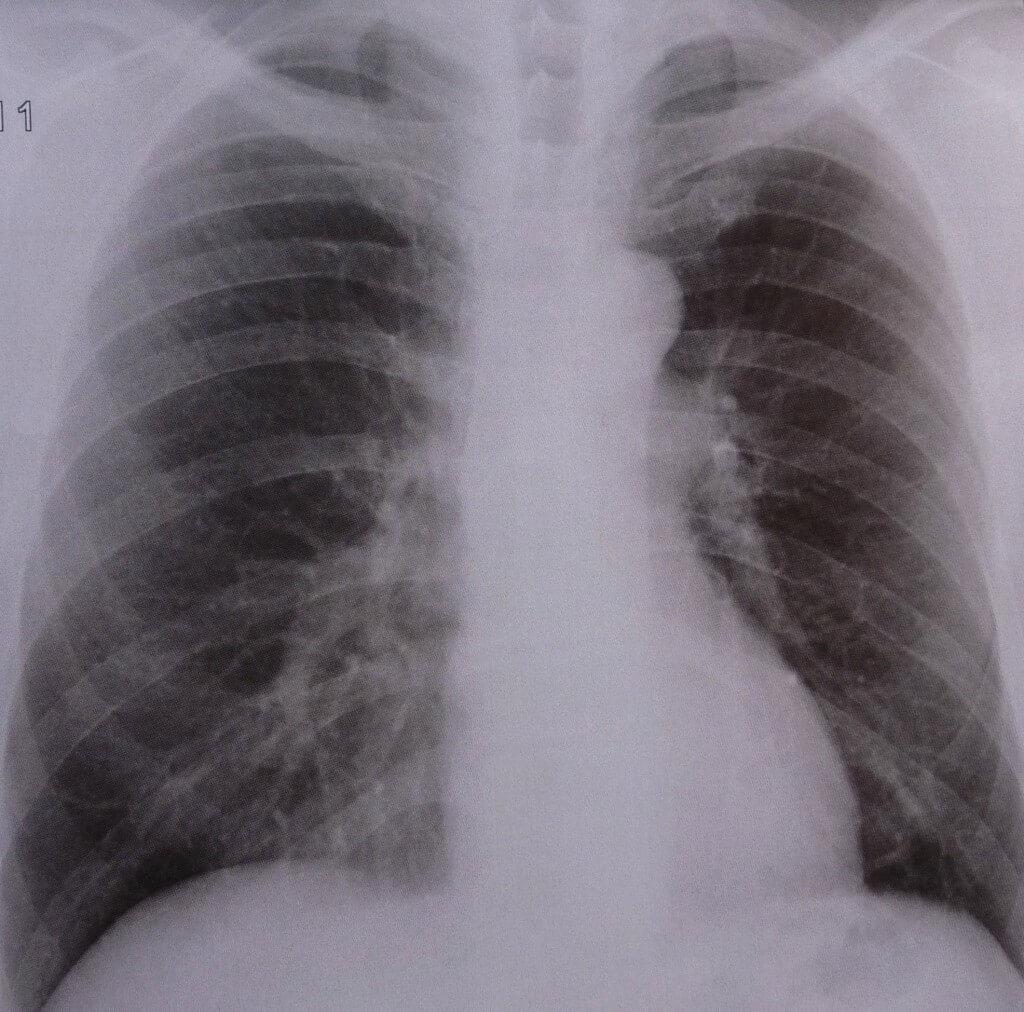 Hartnäckiger Husten?  An Tuberkulose denken!