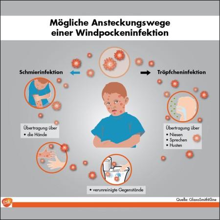 Windpocken - Mögliche Ansteckungswege - Infografik (Grafik © GSK)