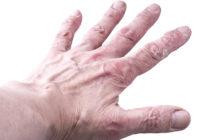 Rheumatische Schuppenflechte