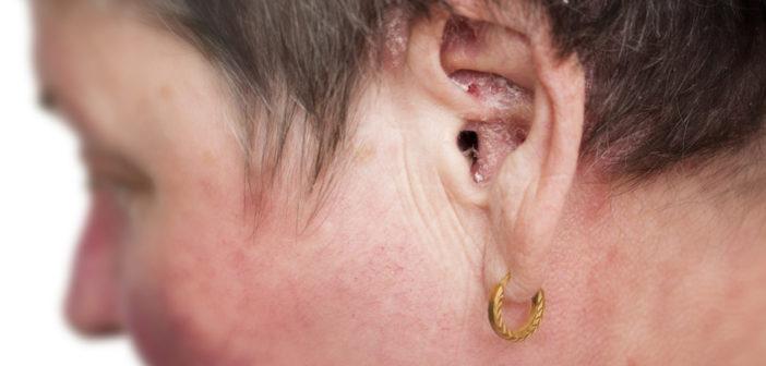 Schuppenflechte im Ohr