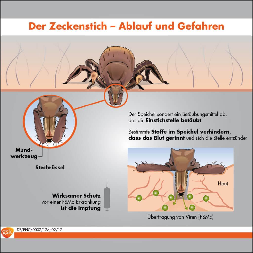 Der Zeckenstich (Grafik © GSK)