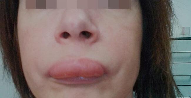 Hautschwellungen- Hauptsymptom des hereditären Angioödems (HAE) (Foto © Shire, Patientin)