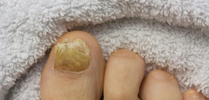 Nagelbettentzündungen behandeln