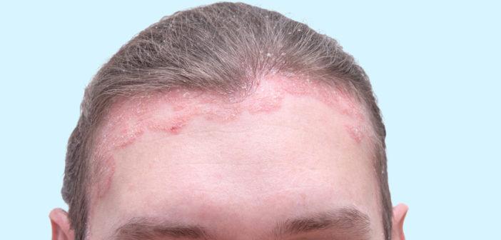 Atemberaubend Schuppenflechte auf dem Kopf ::: LZ-Gesundheitsreport @JJ_73
