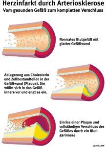 Herzinfarkt durch Arteriosklerose - Abbildung