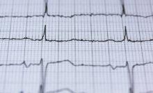 Vorderwandinfarkt Und Hinterwandinfarkt Wo Ist Der
