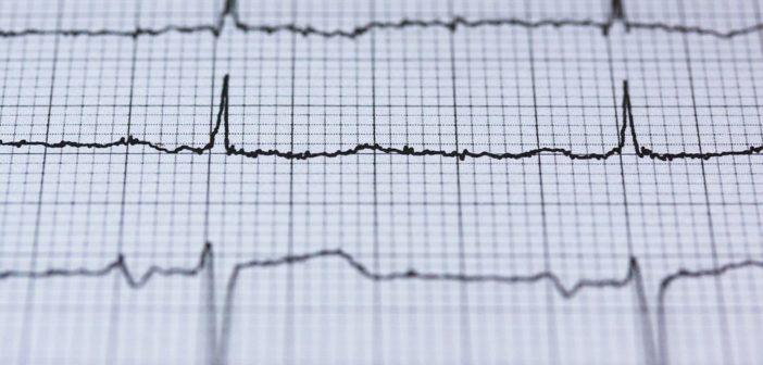 EKG - Messung des Herzschlags