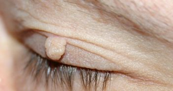 Stielwarze (Fibrom) am Augenlid