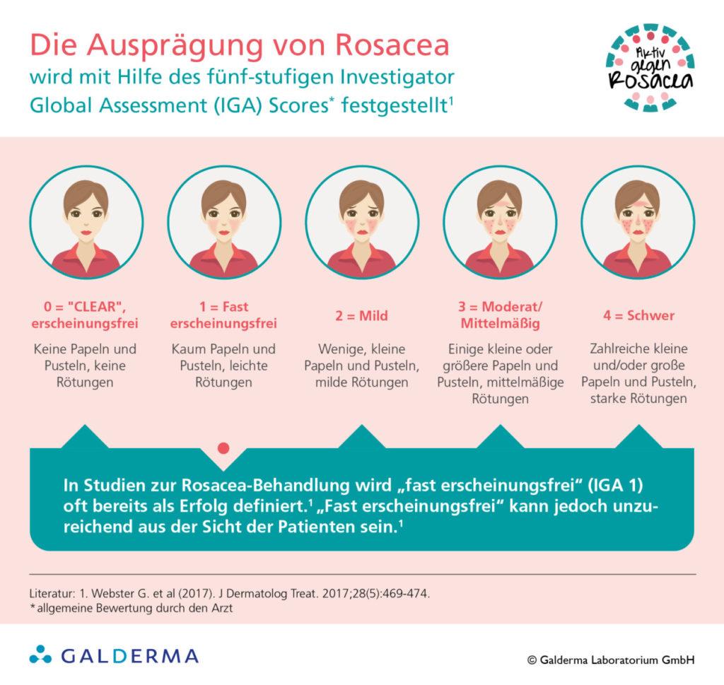 Die Ausprägung von Rosacea - Infografik