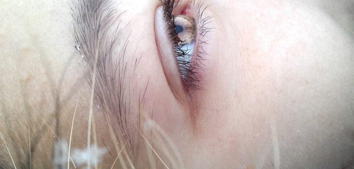 Okuläre Rosacea - Wenn die Krankheit die Augen betrifft