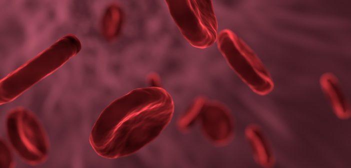Sepsis (Blutvergiftung) - Ursachen, Symptome und Behandlungsmöglichkeiten