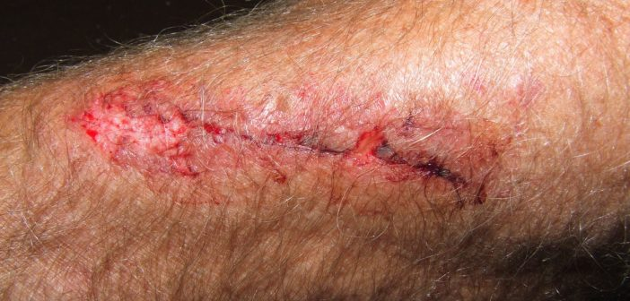 Blutvergiftung am Arm