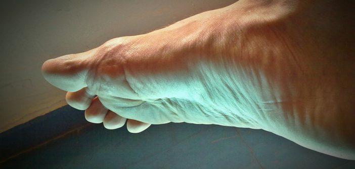 Blutvergiftung am Fuß - rechtzeitig erkennen und behandeln!