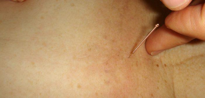 Wie Akupunktur bei Migräne helfen kann