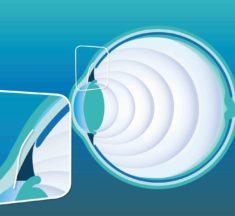 Das Glaukom: Eine Augenerkrankung auf dem Vormarsch
