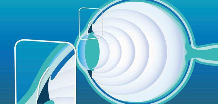 Das XEN-Glaukom-Gelimplantat