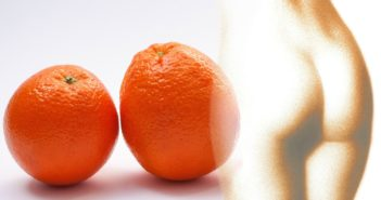 Cellulite - Ursachen, Symptome und Behandlung