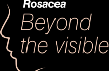Rosacea Beyond the visible