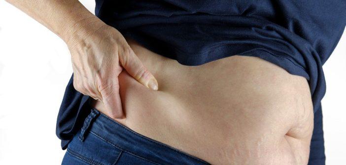 Adipositas, Übergewichtige Person