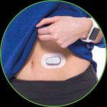 Smarte Kontrolle: ein kleiner Sensor misst im Unterhautfettgewebe den Glukosewert,