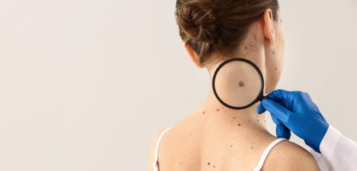 Malignes Melanom: Schwarzer Hautkrebs