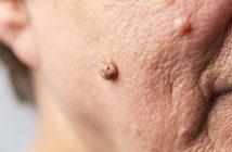 ältere Person mit einer Alterswarze im Gesicht