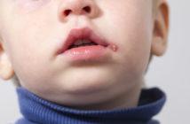 kleiner Junge mit Lippenherpes