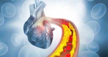 Skizze eines Herzen - Cholesterinzufuhr