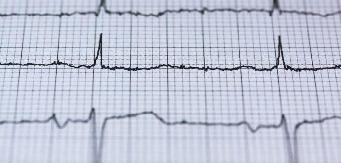EKG eines menschlischen Herz