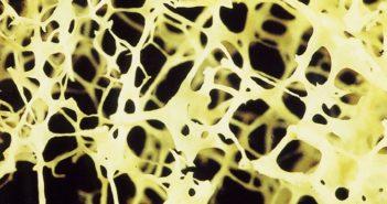 Knochengesundheit - Laborbild