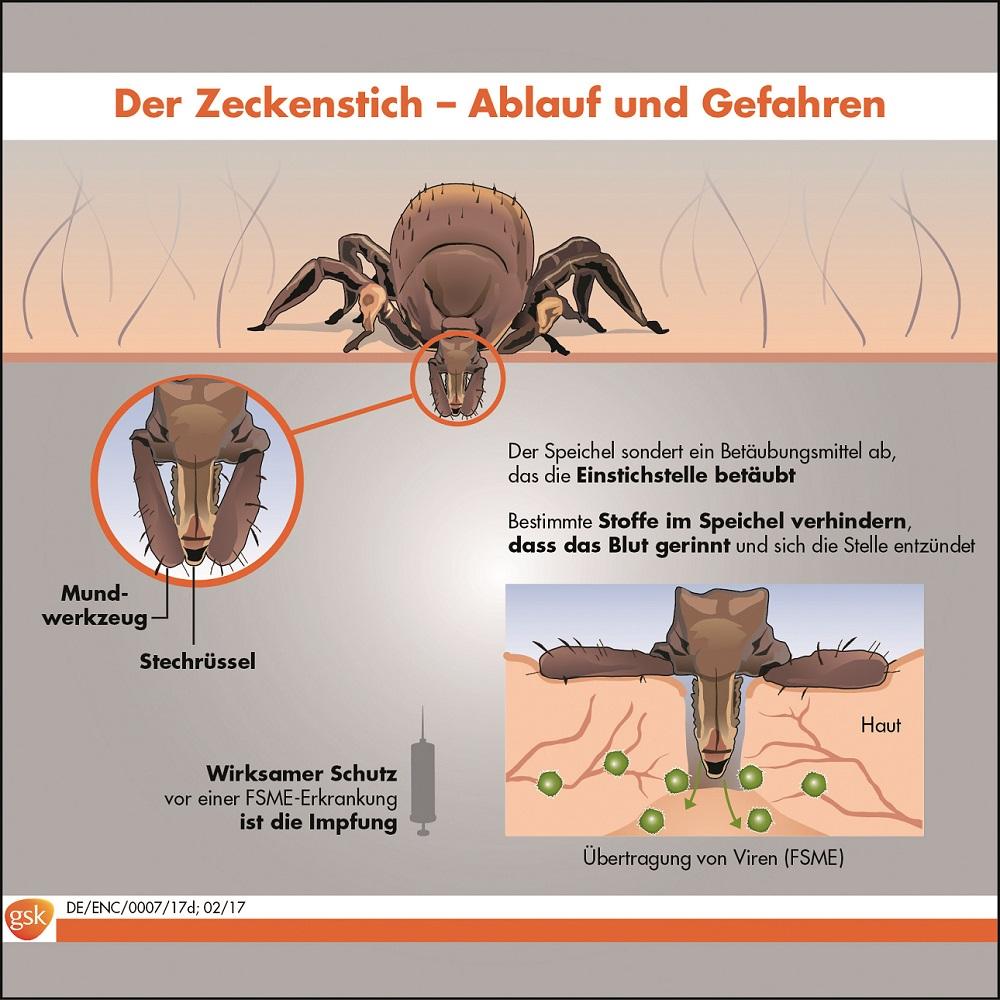Zeckenstich Info Grafik