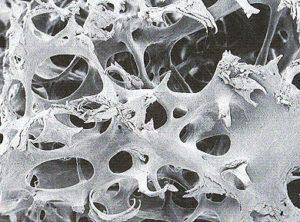 Knochenschwund - gute Knochenstruktur